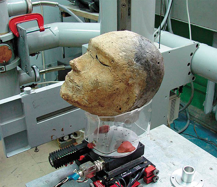 Head prepared for fluoroscopy